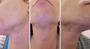 Laser Hair Removal For Trans Women Gendergp Transgender Services